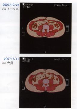 内臓脂肪写真