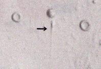 精巣内の精子