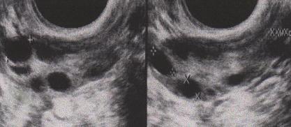 卵巣内の卵胞